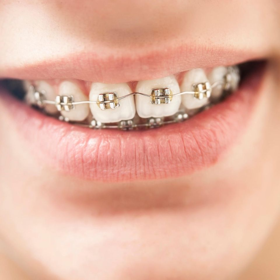 Frau mit Zahnspange