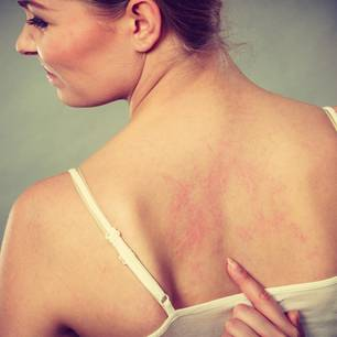 Hautproblem: Frau mit geröteter Haut