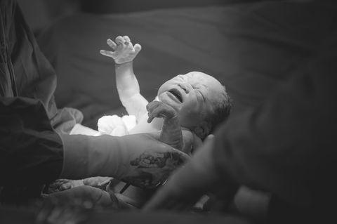 #jedeGeburtzählt: Baby kommt der Kaiserschnitt zur Welt