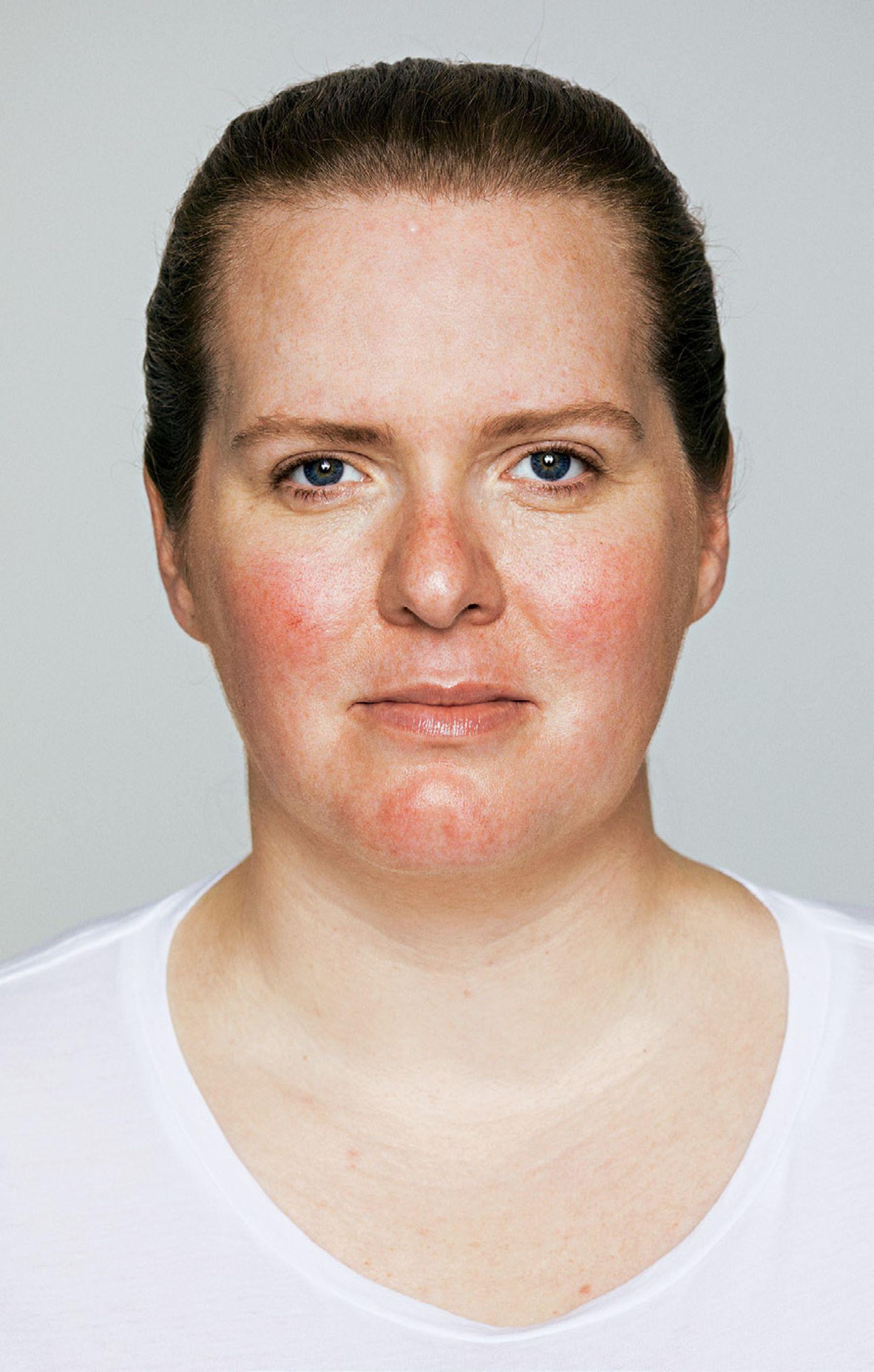 Hautbild verbessern: Hilfe gegen Akne, Falten und Co.: Rosazea vorher