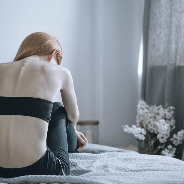 Frau leidett an Anorexie
