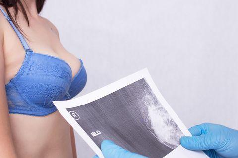 Arzt hält Bild einer geröntgen Brust