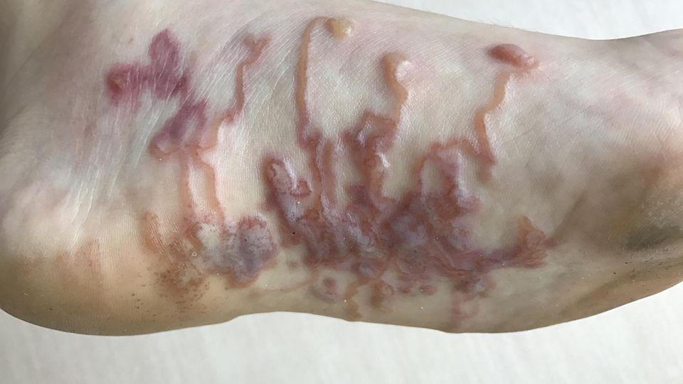 Hakenwürmer im Fuß