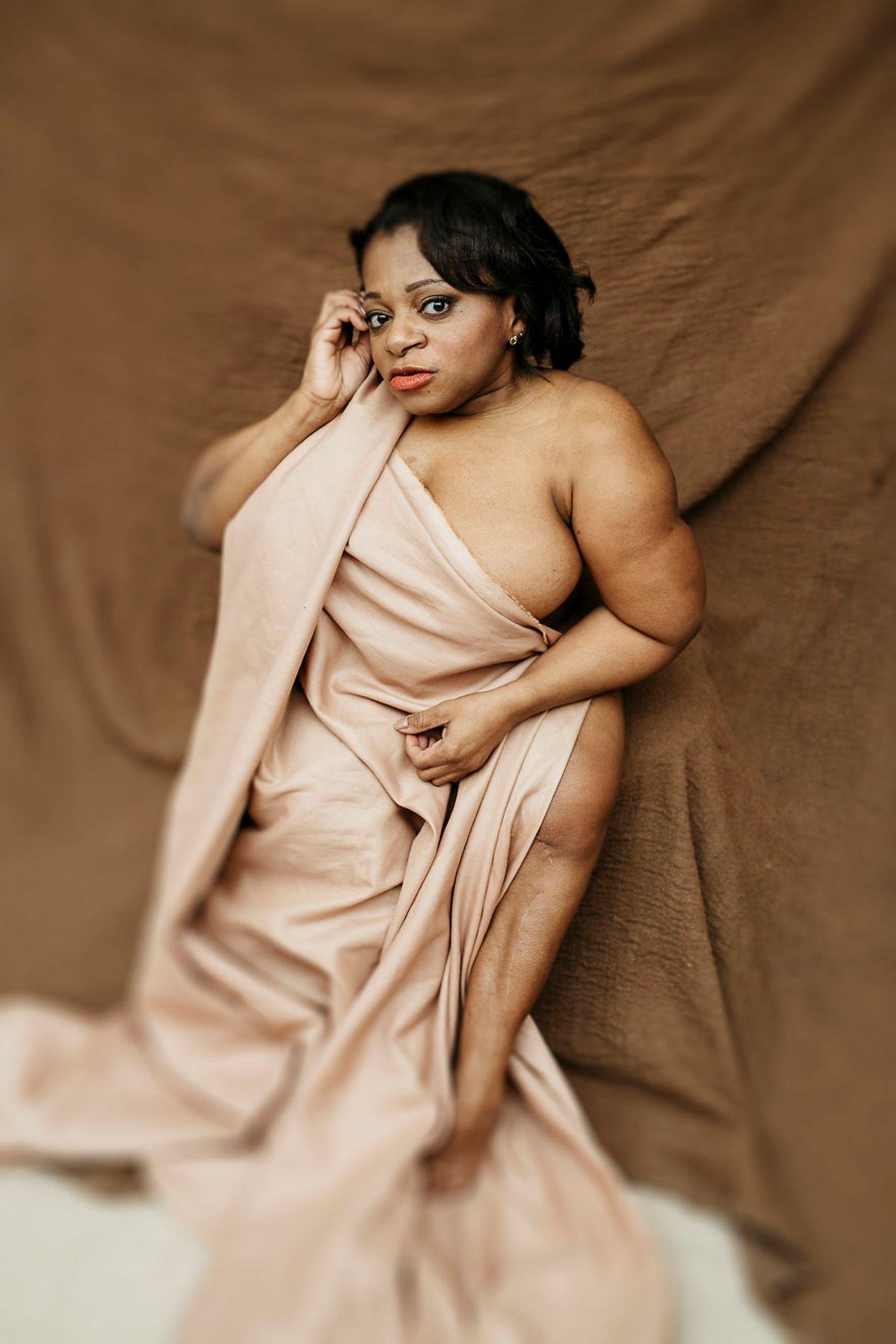Frauen mit Handicap: Frau posiert mit Decke