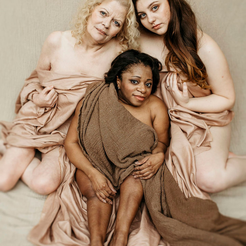 Frauen mit Handicap: Frau posieren zusammen