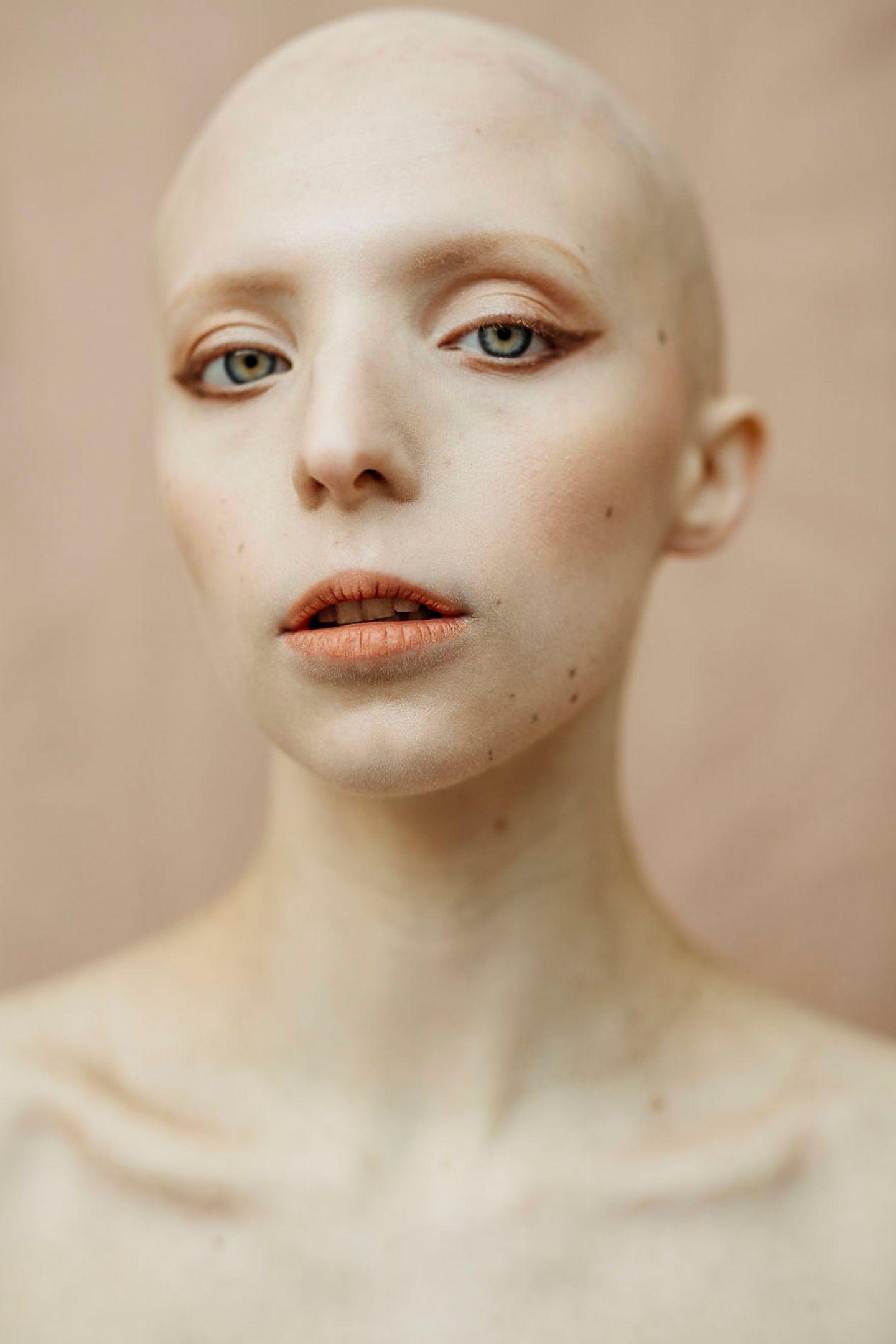 Frauen mit Handicap: Frau ohne Haare