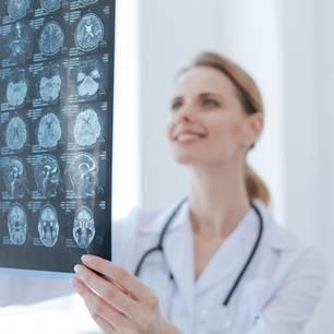 Neurologe: Frau mit Abbildung in den Händen