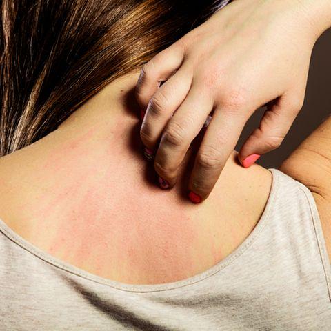 Hautallergie: Frau kratzt sich am Nacken