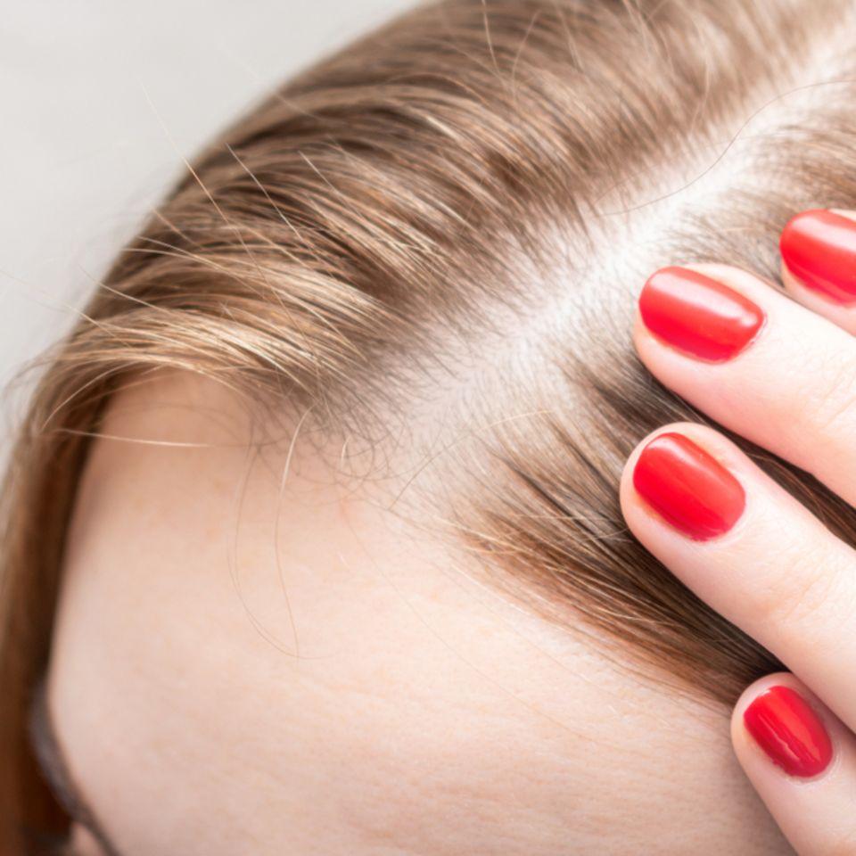 Diffuser Haarausfall: Frau fasst an ihren Scheitel