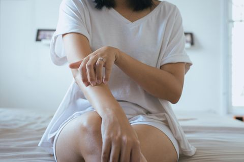 Neurodermitis: Frau kratzt sich am Arm