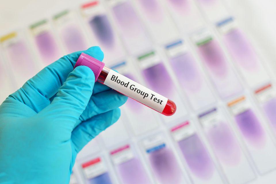 Corona Blutgruppentest