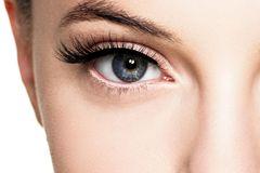 Wimpern fallen aus: Auge einer Frau