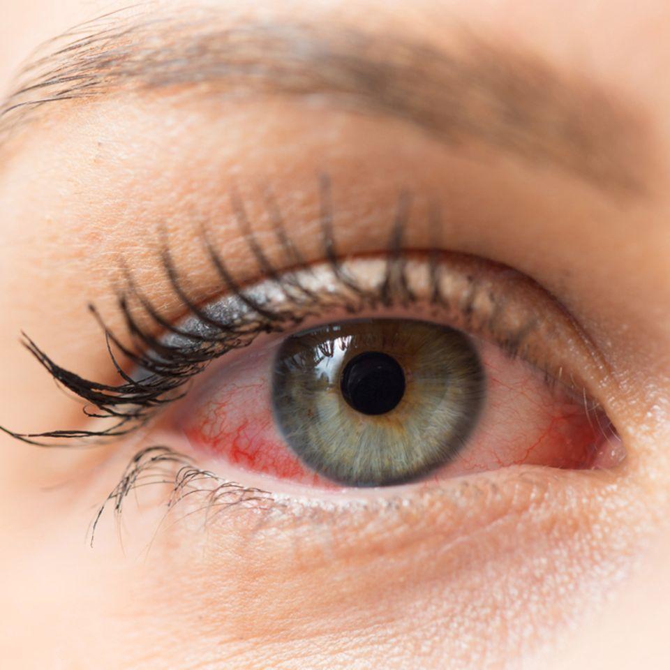 Bindehautentzündung-Hausmittel: Frau mit rotem Auge