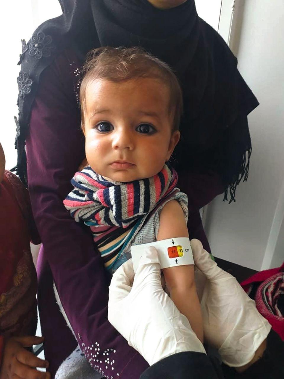 Ein Schal fürs Leben: Mangelernährtes Kind