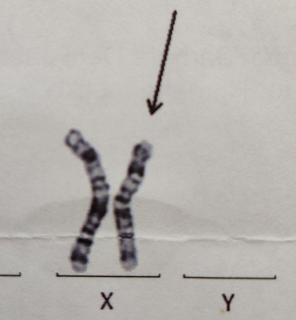 Janas X-Chromosom