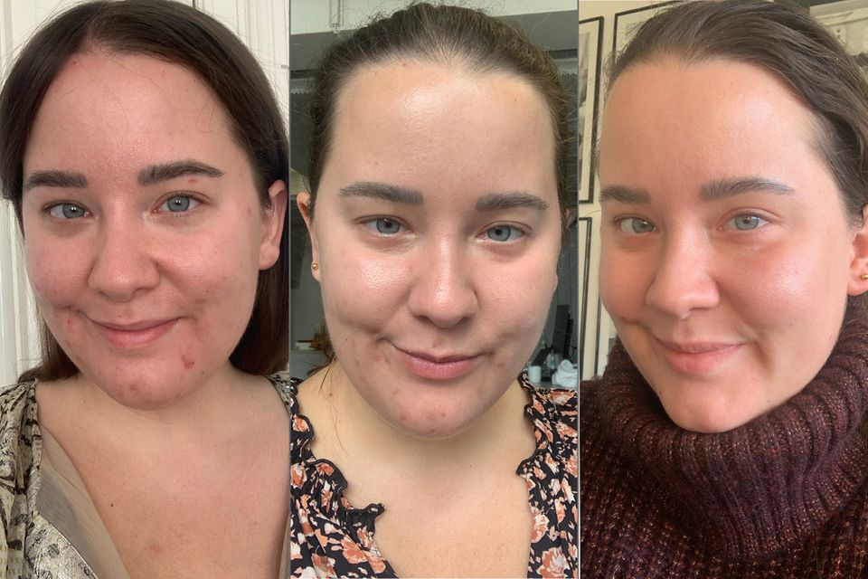 My skin at the start of the treatment (left), after four weeks (middle) and now (right)