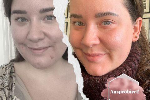 Akne mit 32!: Ich habe den Hautarzt für zu Hause getestet – und so sieht mein Gesicht jetzt aus