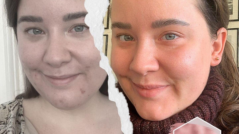 Akne-mit-32-Ich-habe-den-Hautarzt-f-r-zu-Hause-getestet-und-so-sieht-mein-Gesicht-jetzt-aus