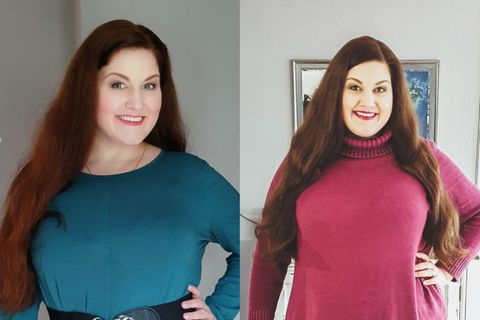 Schlauchmagen-OP: Melina vorher und nachher