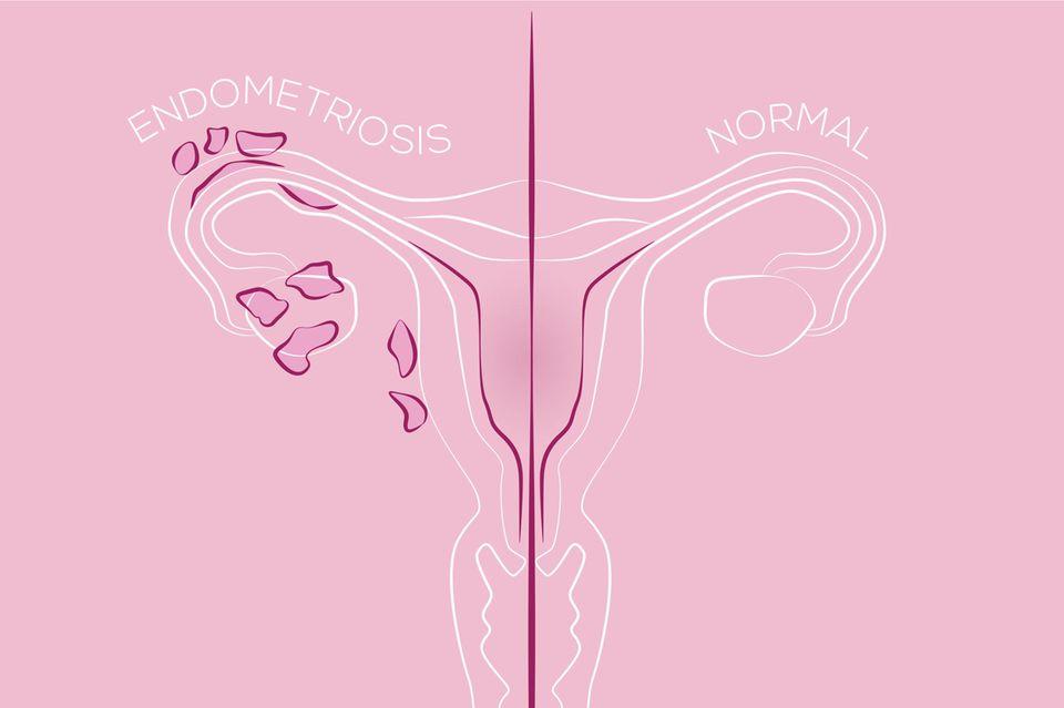 Leben mit Endometriose: Zeichnung von Endometriose
