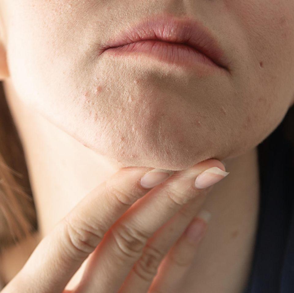 Hypersensible Haut: Frau mit irritierter Haut
