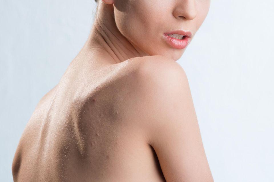 Hypersensibel: Akne am Rücken
