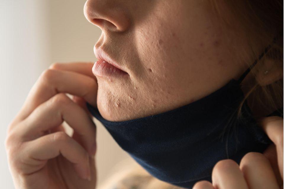 Hypersensible Haut: Frau mit Maskne