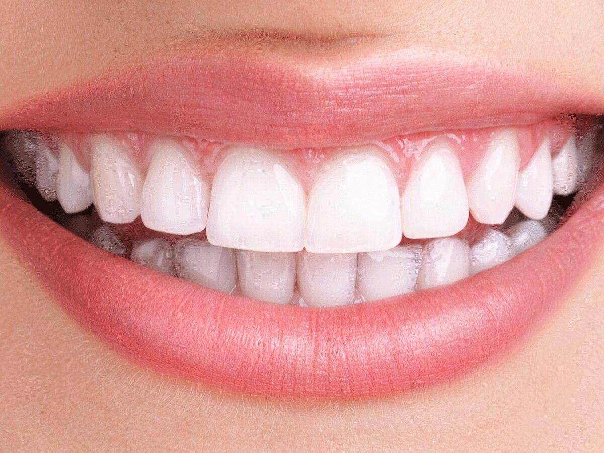Dieses Hausmittel macht eure Zähne weißer